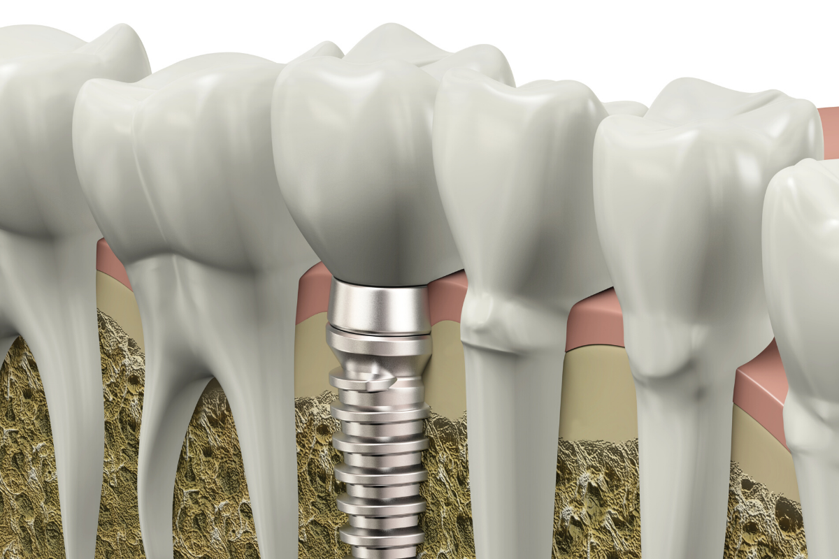 Dental Implants - Cranberry Hill Dentistry