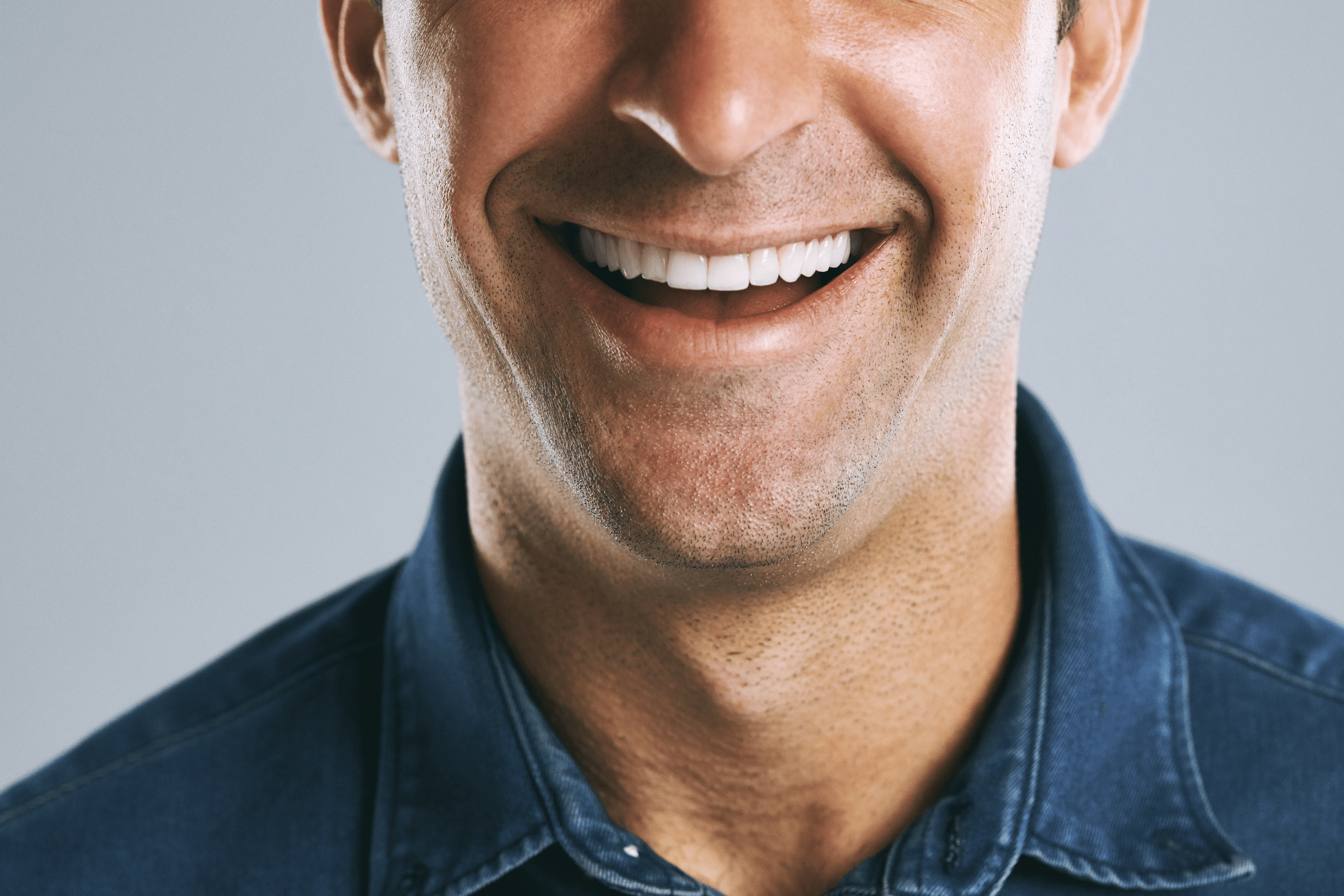 A Comparison of Veneers and Bonding to Improve Your SMile